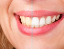 Tanden bleken Groningen